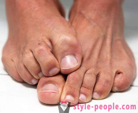 Dry skin on your feet: Causes